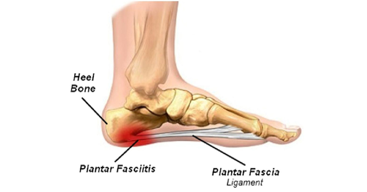 Rise-of-Plantar-Fasciitis_Soles-in-Motion